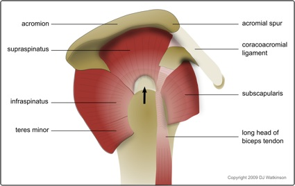 Rotator cuff tear affecting the supraspinatus tendon
