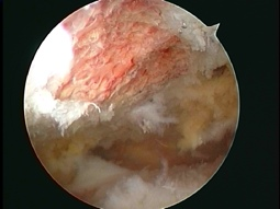 completed arthroscopic subacromial decompression